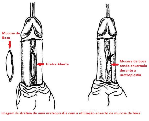 Uretroplastia substitutiva com o tecido da mucosa de boca como tratamento de estenose de uretra