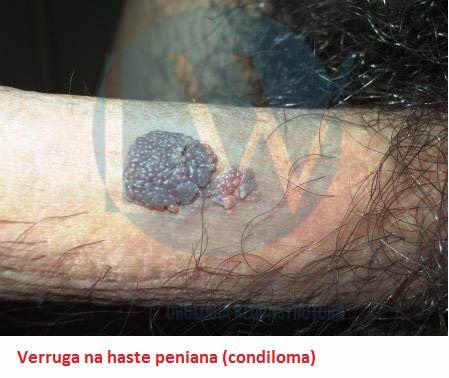 Verruga na haste peniana (condiloma)