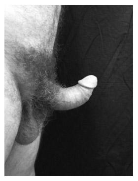 Curvatura dorsal na Doença de Peyronie