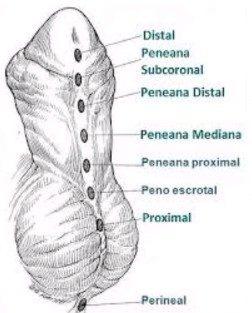 Hipospádias