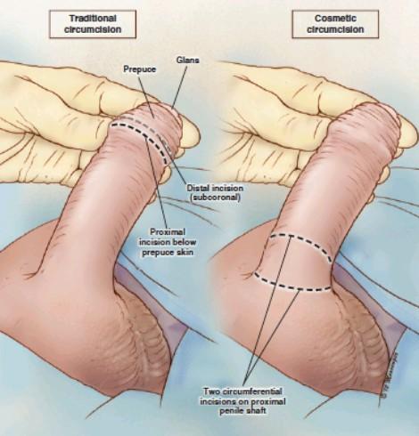 Ilustração mostrando a diferença entre a circuncisão convencional (à esquerda) e a circuncisão estética (à direita)