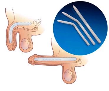 Prótese semi-rígida